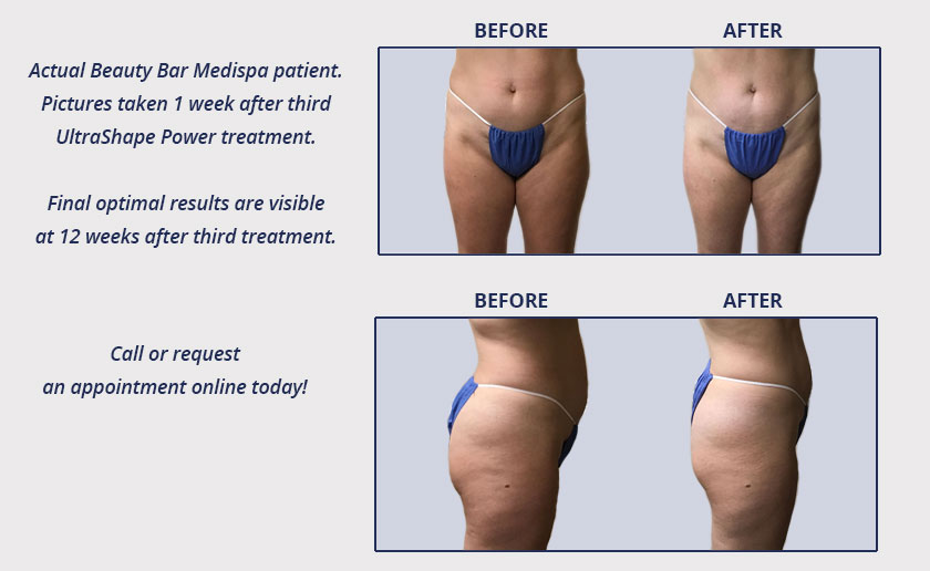 UltraShape Power weight loss results at Beauty Bar Medispa