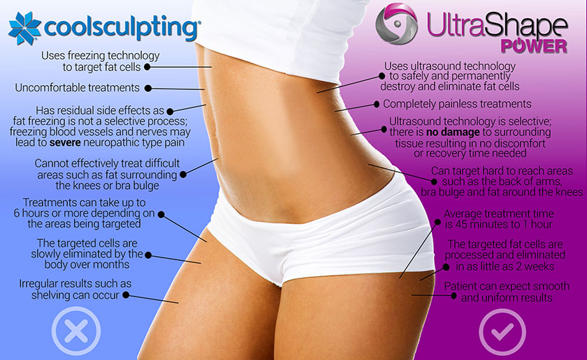 UltraShape Power versus CoolSculpting