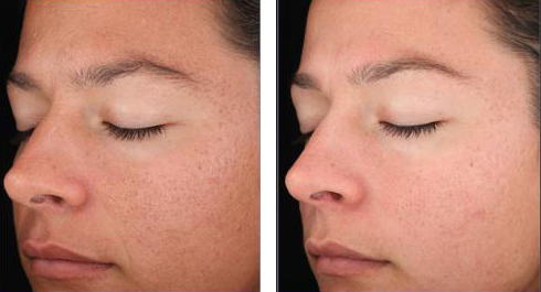 advanced corrective peel before and after