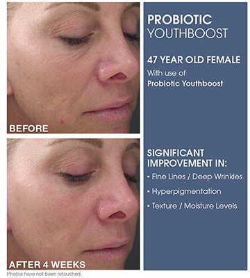 Beauty Bar Medispa Probiotic Youthboost