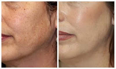 MicroPeel before and after