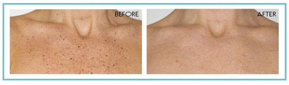 photo rejuvenation available at Beauty Bar Medispa