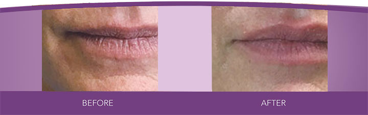 Vollure before and after photo of actual Beauty Bar Medispa patient in Greensville, NC
