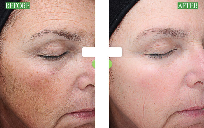 before after chemical peel Beauty Bar Medispa Greenville NC