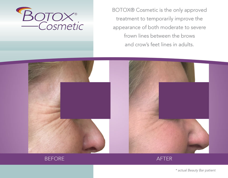 Before and after Botox for Crow's Feet