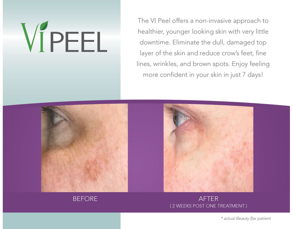 Before and after ViPeel for brown spots
