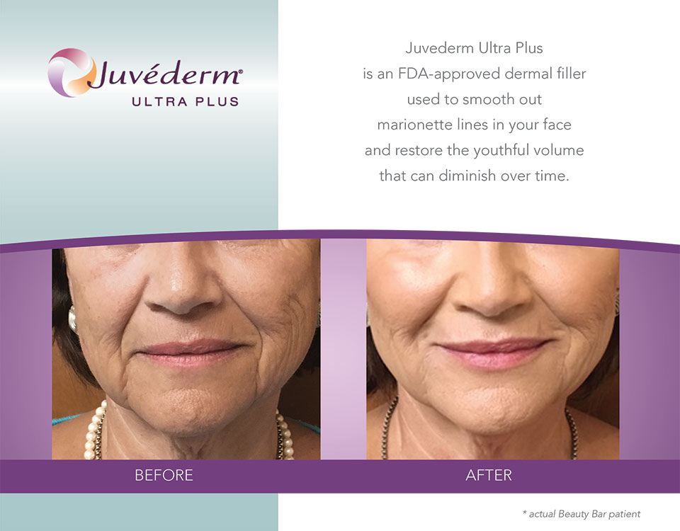 Juvederm Ultra Plus before and after marionette lines
