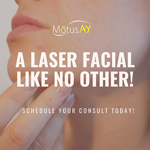ND YAG Laser treatments available at Beauty Bar Medispa