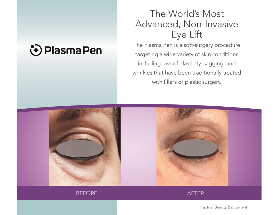 Before and after Eyelift with Plasma Pen