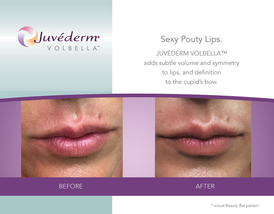 Beauty Bar Medispa before and after lip volume