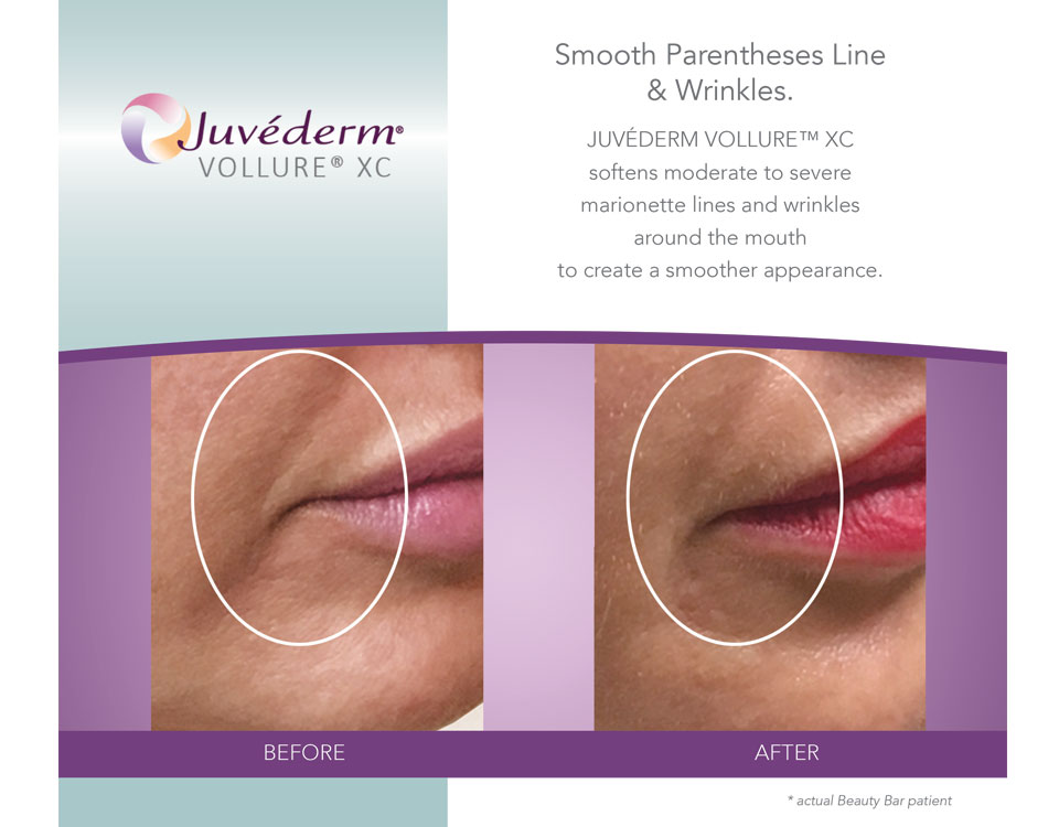 Beauty Bar Medispa before and after for marionette lines