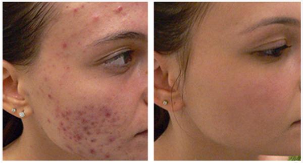 Hydration Facial at Beauty Bar Medispa Greenville NC