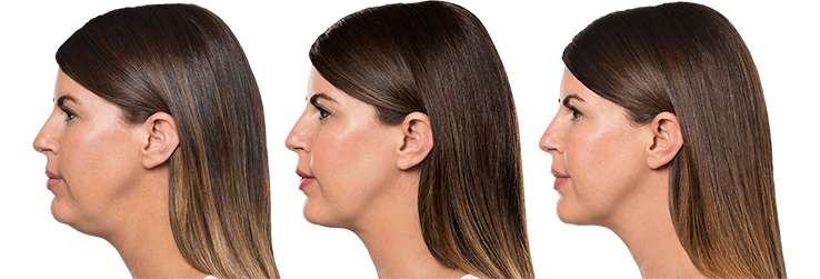 KYBELLA treatments available at Beauty Bar Medispa Greenville NC