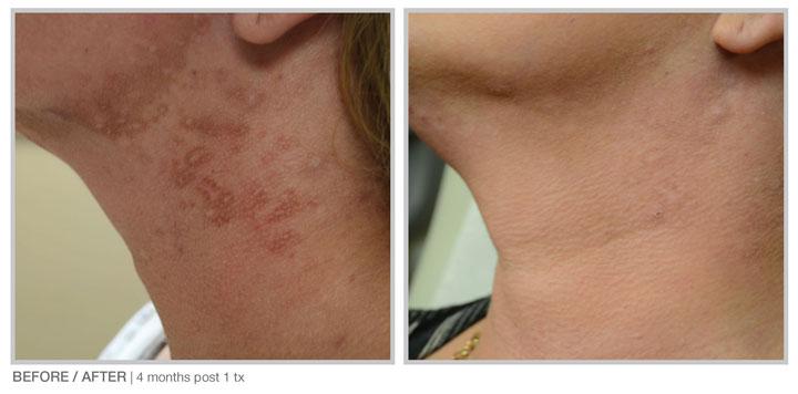 HALO laser treatment at Beauty Bar Medispa