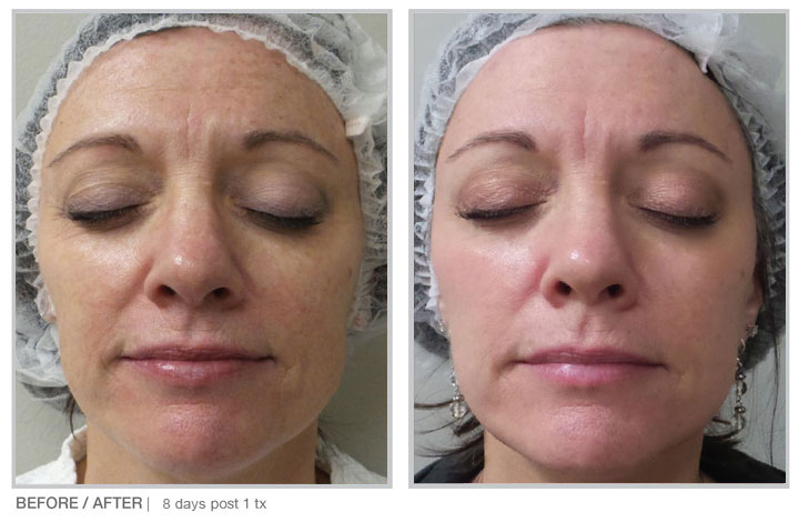 The HALO Laser Treatment