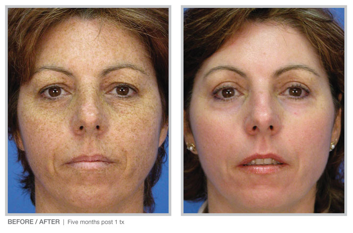 Broad Band Light (BBL) technology for long-term skin improvement results