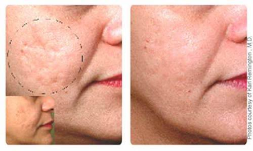 microlaserpeel smoothes skin