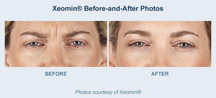 Xeomin available at Beauty Bar Medispa Greenville NC